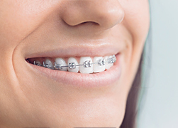 A smiling patient with braces